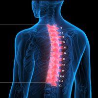 Overcoming Osteoporosis